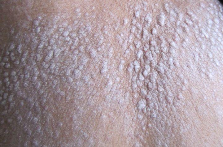 患者护理皮肤的方法有什么呢