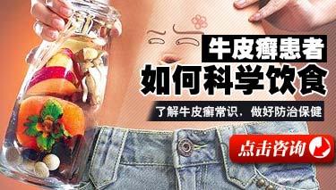牛皮癣患者应怎样搭配饮食?.jpg